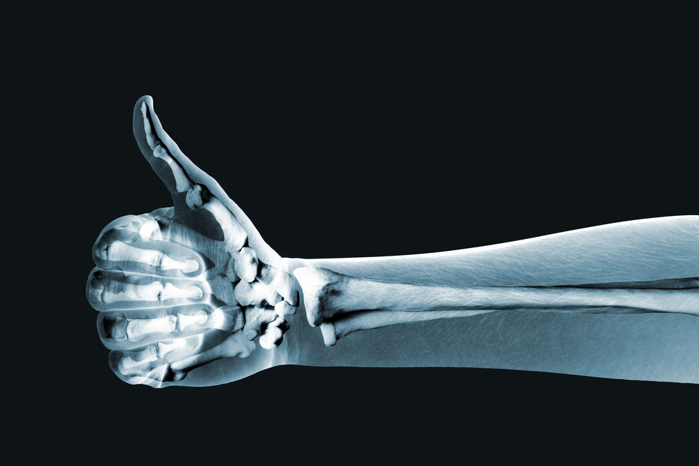 How to Improve Your Bone Health